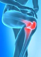 rheumatoide_Arthritis